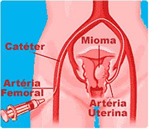 Como se processa a Cirurgia-de-embolização - Webmioma - Passo 03