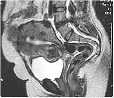 Pacientes que podem fazer embolização - Webmioma
