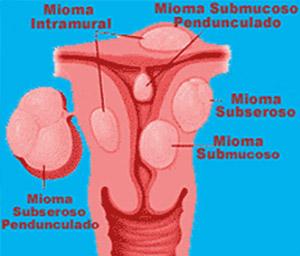 Mioma Uterino - Miomas - WebMioma